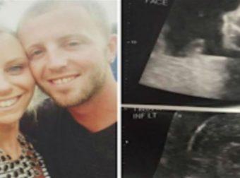 24χρονη έγκυος πήγε για υπερηχογράφημα – Όταν κοίταξε την οθόνη «σταμάτησε» η καρδιά της (Video)