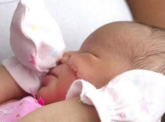 Νεογέννητο χρειάστηκε 13 ράμματα στο πρόσωπο μετά από ατύχημα στην καισαρική